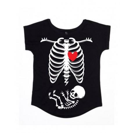 Vestido Mamã  - X-Ray